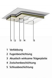 StoSilent Direct Aufbau